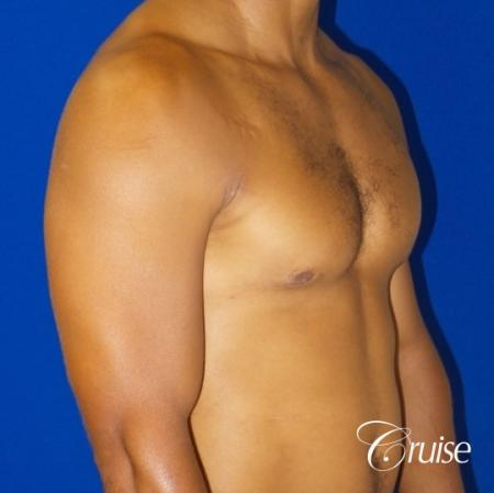 gynecomastia caused by testosterone -  After Image 2