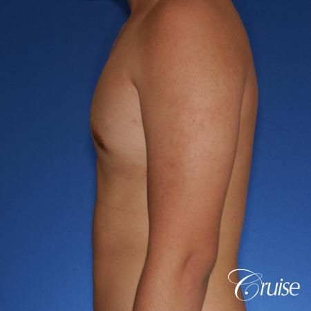 best gynecomastia surgery with plastic surgeon, Dr. Cruise -  After Image 2