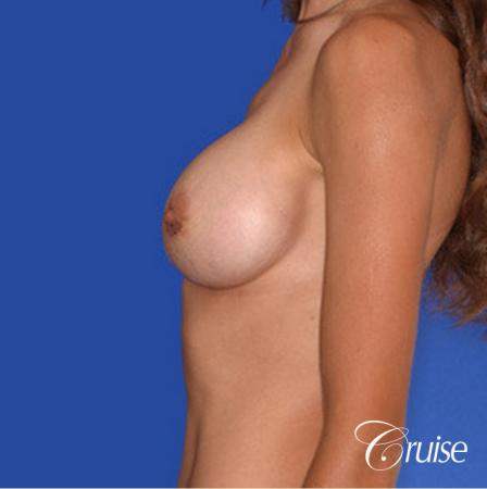 best pictures of breast implant rupture saline -  After Image 2