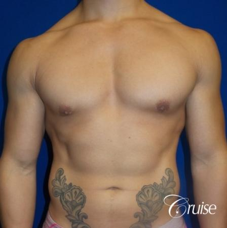 Body Builder Gynecomastia -Areola Incision - After Image 1
