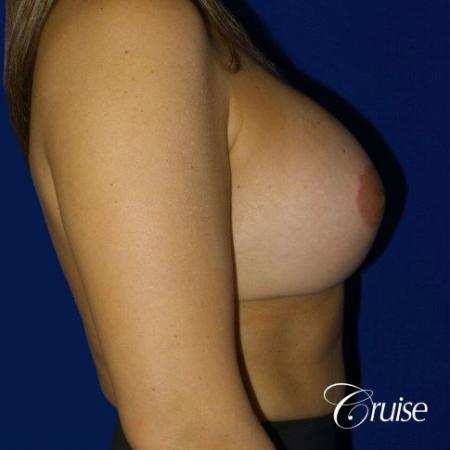 Breast Lift Anchor W/ Silicone Implants On Young Woman - After 2