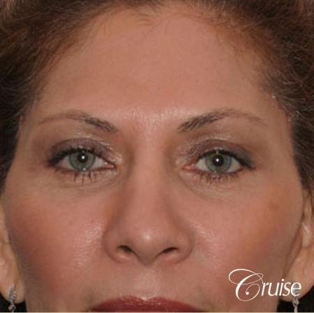 best woman temple lift scars Newport Beach - After Image