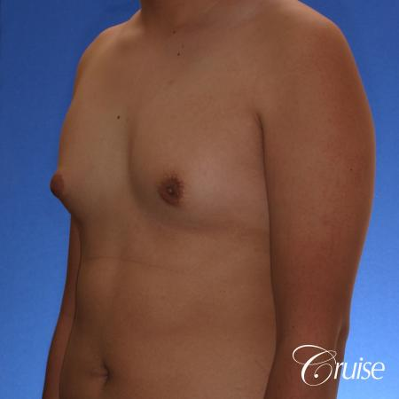 best gynecomastia surgery with plastic surgeon, Dr. Cruise - Before Image 3