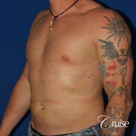moderate gynecomastia with puffy nipple on athletic adult -  After Image 2
