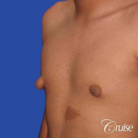 gynecomastia patient gets nipple reduction for best results - Before Image 3
