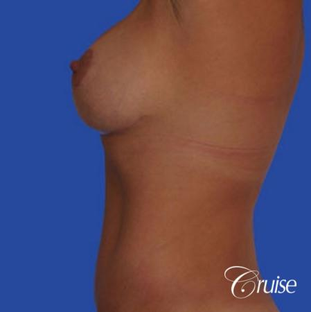 photos of best breast lift anchor with saline implants in Newport Beach -  After Image 2