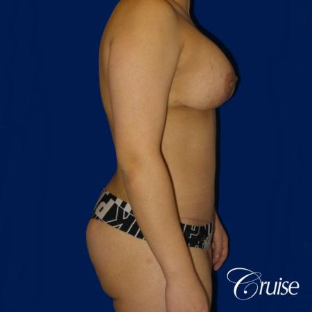 Extended Tummy Tuck, BBL, Breast Lift Anchor With Silicone - After Image 2