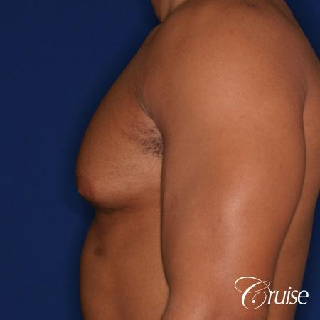 26 yo athletic patient with moderate gynecomastia - Before Image 2