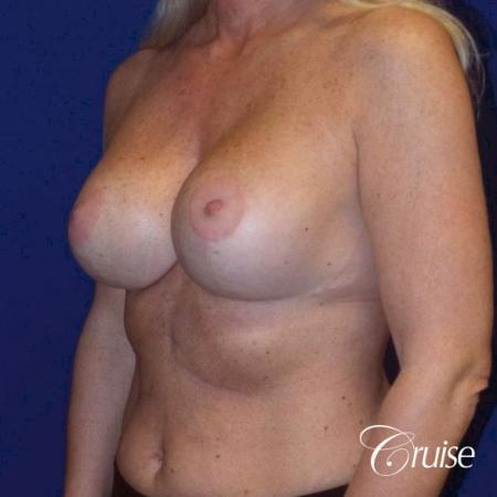 Breast Lift - Saline Augmentation - After Image 2