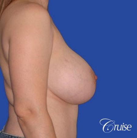 best breast reduction pictures with saline implants - Before Image 2