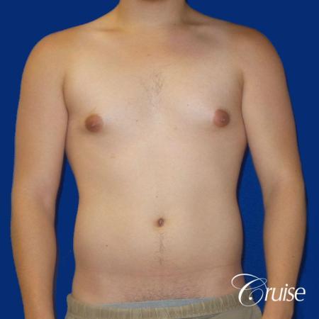 Best Gynecomastia surgeons Southern California - Before Image 1