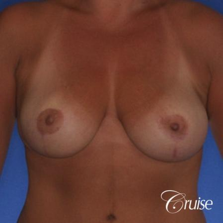 best pictures of breast lift anchor on 38 yr old mother -  After Image 1