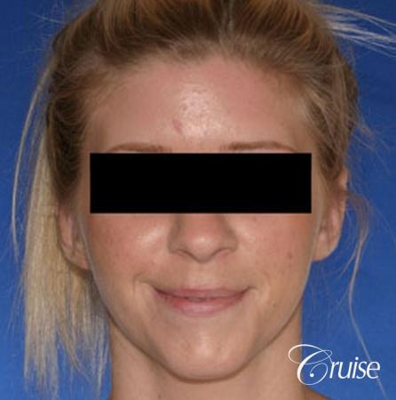 best otoplasty photos by top plastic surgeon -  After Image 1