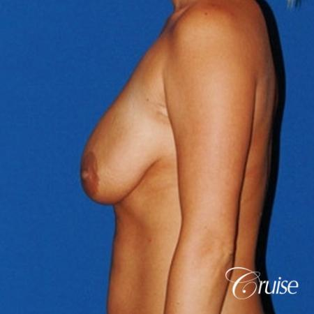 best breast lift anchor with saline implants - Before Image 2