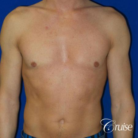 Mild Gynecomastia -Puffy Nipple -Areola Incision - After Image