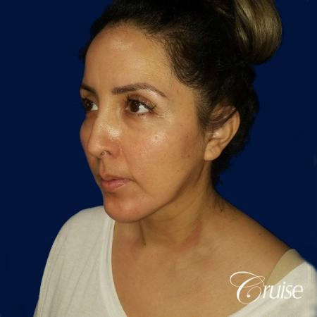 Liposuction of Neck/Jawline - After Image 3