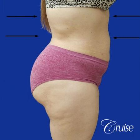 Best liposuction procedures dr cruise -  After Image 4