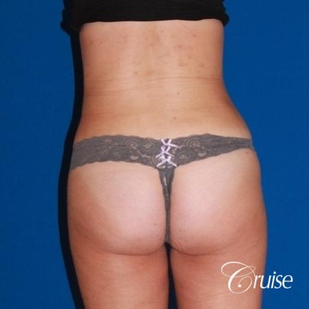 liposuction love handles and tummy -  After Image 4