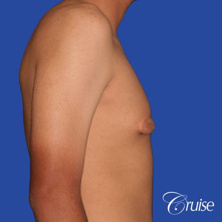 gynecomastia patient gets nipple reduction for best results - Before Image 4