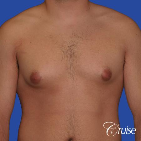 mild case of gynecomastia on adult - Before Image 1