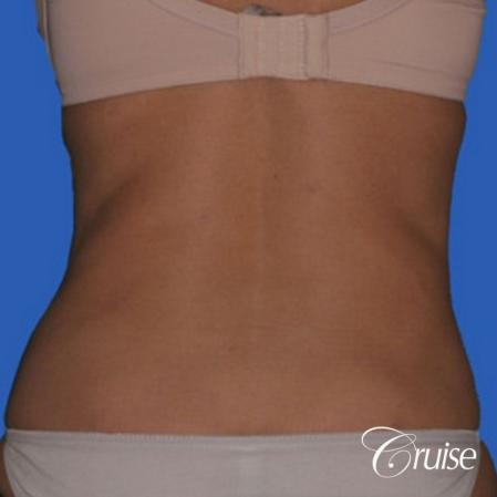 best lipo photos of love handles and stomach -  After Image 2