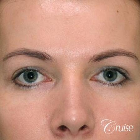best before and after pictures of upper eyelid surgery - After Image