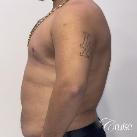 Gynecomastia: Patient 129 - After 2