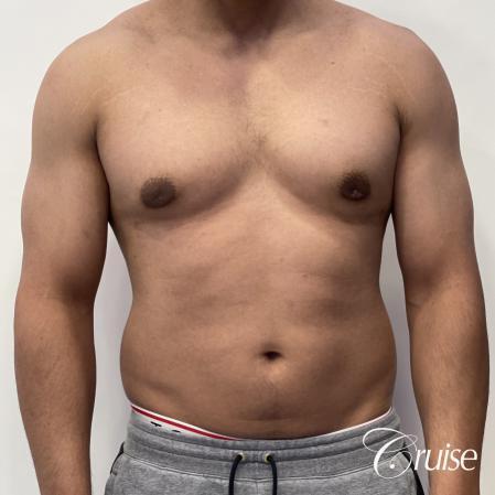 gynecomastia surgery -  After 1