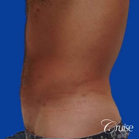 best male ab sculpting liposuction abdomen flanks -  After Image 2