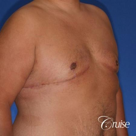 free nipple graft gynecomastia results -  After Image 2