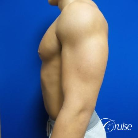 bodybuilder with gynecomastia - Before and After 3