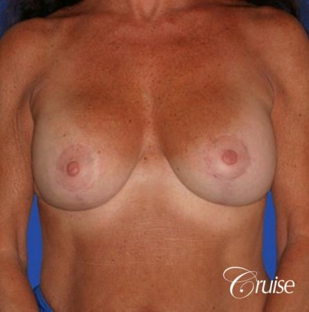 best results for breast lift in Orange County -  After Image 1