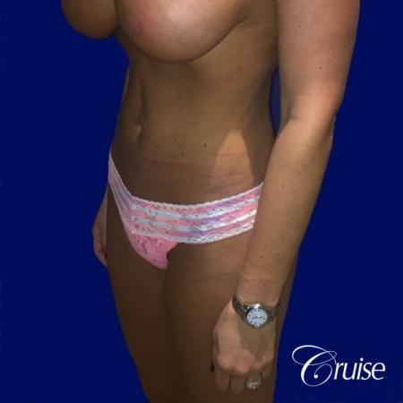 Liposuction Abdomen and Flanks with Midline Contour - After Image 3