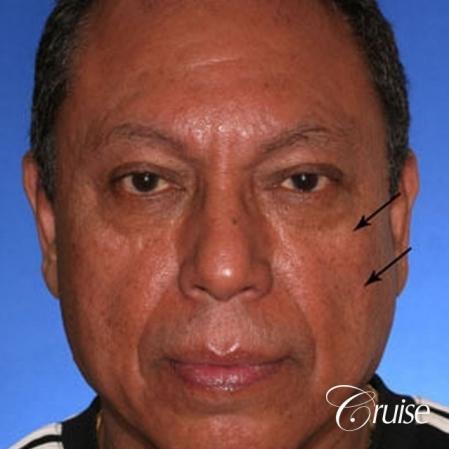 Fat Transfer - Tear Trough, Lower- Lids, Cheeks - Before Image