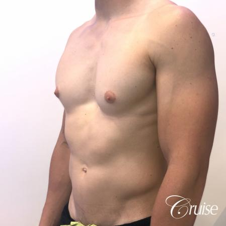 gynecomastia with puffy nipples - Before Image 3