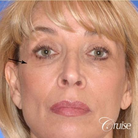 great facial fat transfer result woman - Before Image