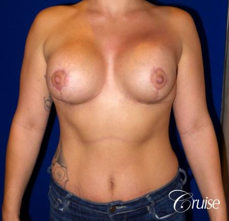 Breast Lift - Anchor w/ Saline Implants on Young Woman - After Image