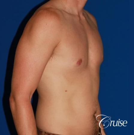 puffy nipple on low body fat -  After Image 4
