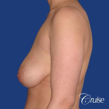 young woman who had best results for breast lift with saline implants - Before Image 2