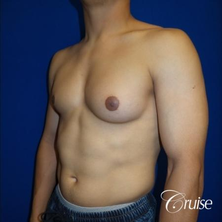 gynecomastia photos of an adult with overdeveloped breast - Before Image 2