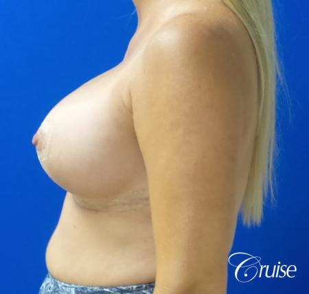 Breast Lift And Augmentation: Patient 6 - After Image 3