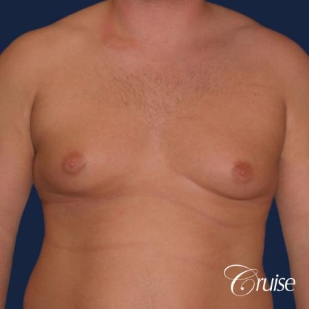 donut lift Gynecomastia correction - Before Image 1
