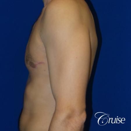 Unilateral gynecomastia condition photos -  After Image 3