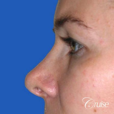 best before and after pictures of upper eyelid surgery - Before Image 2