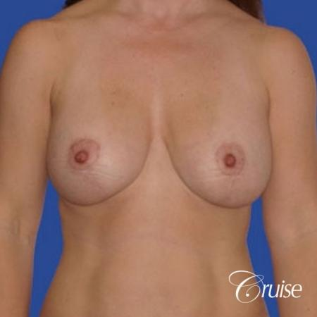 pictures of 42 yr old with breast lift anchor revision -  After Image 1
