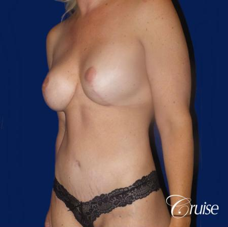 Circumferential Tummy Tuck, Breast Lift Anchor W/ Silicone - After Image 2