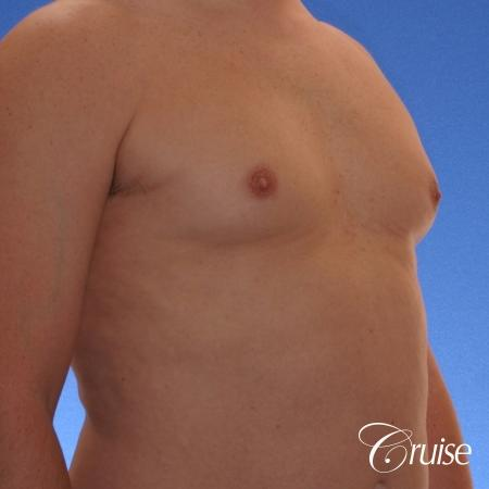 male adult with gynecomastia - Before and After Image 3