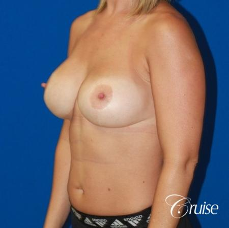 best before and after of breast lift anchor with high profile saline augmentation -  After Image 3