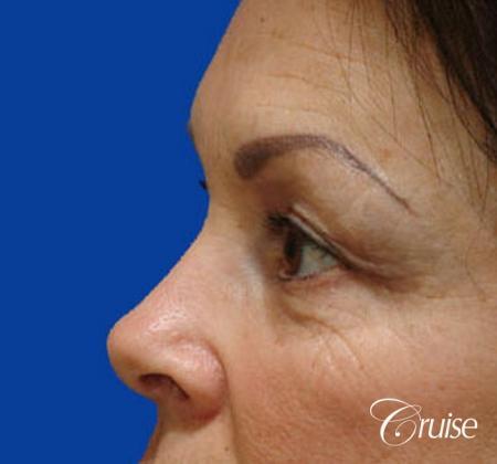 best blepharoplasty eye surgery photos - Before Image 2