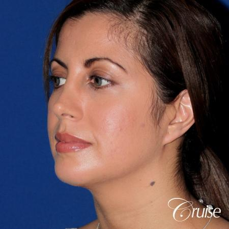 woman with large anatomic chin implant -  After Image 2